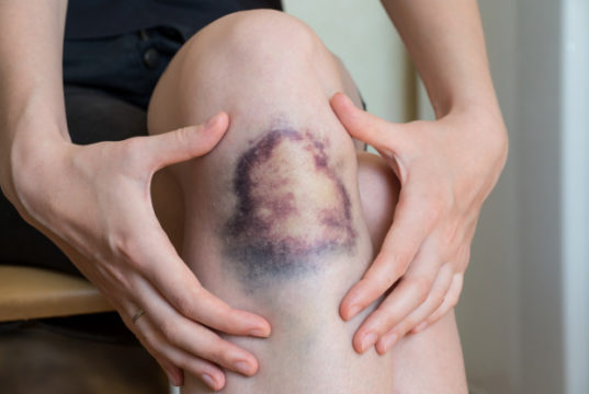 https://www.freepik.com/premium-photo/large-bruise-damage-knee-young-woman_7282907.htm#page=1&query=bruise&position=30