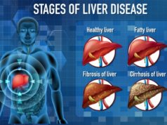 https://www.freepik.com/free-vector/stages-liver-disease_11207715.htm