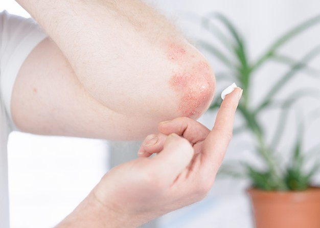 https://www.freepik.com/premium-photo/man-applies-cream-elbow-affected-by-psoriasis_13777117.htm#page=1&query=psoriasis&position=42